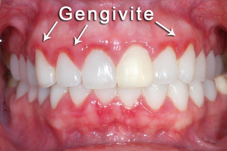 Gengivite