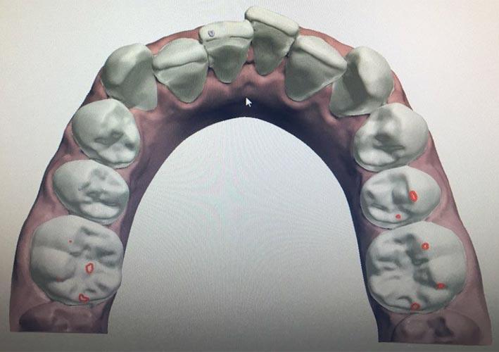 Caso ortodontico dello studio Di Poto - PRIMA
