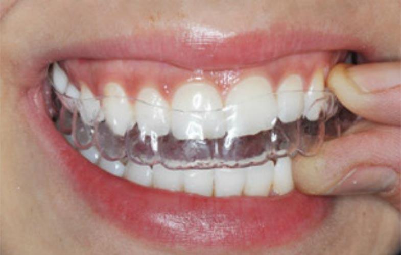 Ortodonzia invisibile dr. Donato Di Poto Battipaglia